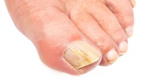 4 τρόποι για να αντιμετωπίσουμε τους μύκητες στα νύχια των ποδιών
