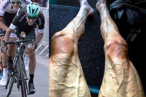 Έτσι έγιναν τα πόδια ενός ποδηλάτη μετά από 16 γύρους στο Tour de France. Τι λένε οι γιατροί για τις αντοχές του ανθρώπινου σώματος